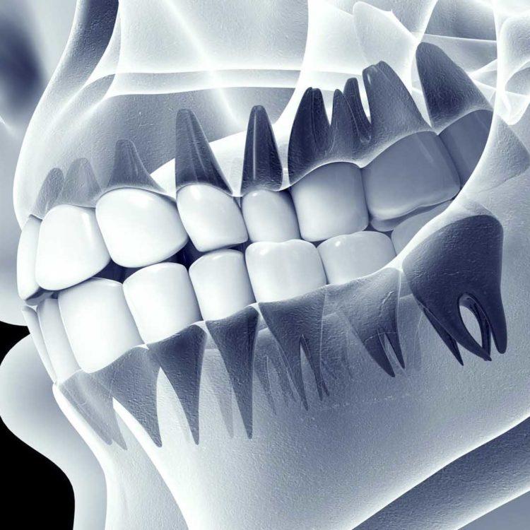 cosmetic dentistry mcallen tx
