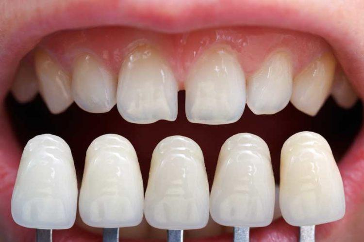 teeth whitening mcallen tx