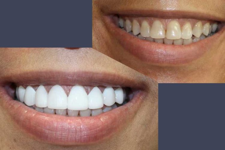 veneers porcelain dental image mcallen tx