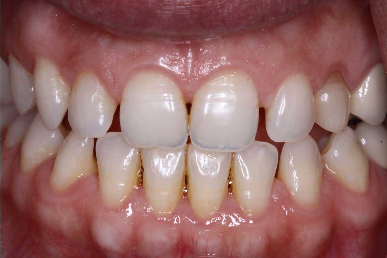 Dentist mcallen tx
